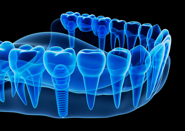 x-ray image of dental implants at Optimum Oral Surgery Group