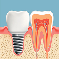 Implant diagram at Optimum Oral Surgery Group