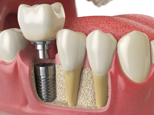 Cross section of implant model teeth at Optimum Oral Surgery Group in Moorestown, NJ